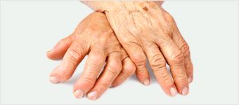 sauna portatil - artritis