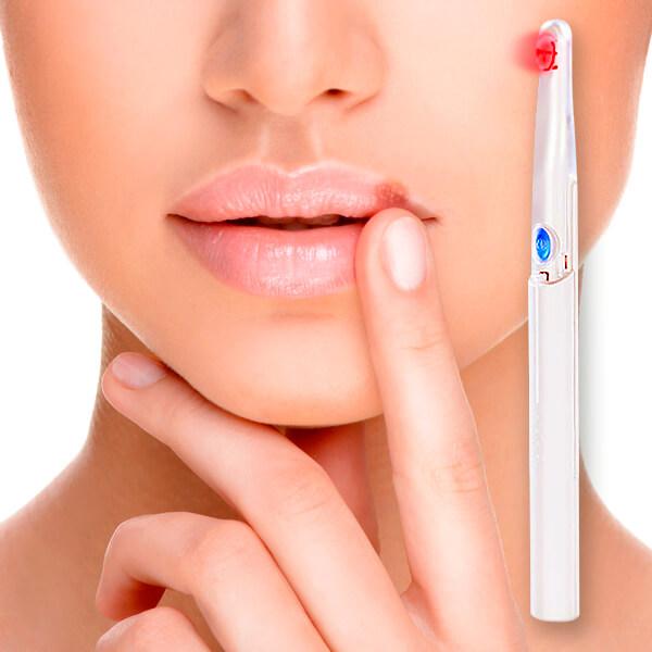 Unidad de fototerapia para herpes labial