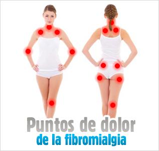 Puntos de dolor de la fibromialgia